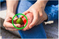 I lékaři považují tuto metodu za efektivní. Fig Juice, Garlic Pills, Pure Castor Oil, Natural Exfoliant, Fresh Figs, Warts, Salicylic Acid, Tea Tree Oil, Skin Problems