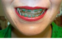 Braces are a great investment, but they can also be a pain. Here are some tips, based on my personal experience: from finding the right orthodontist to eating with braces to proper oral care. Braces Rubber Bands, Braces Bands, Braces Tips, Dental Braces, Teeth Braces, Cute Braces Colors, Getting Braces, Braces Pain, Brace Face