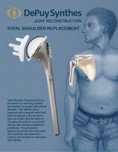 Medical Device Ad for Total Shoulder Replacement. Shoulder Anatomy, Med Surg Nursing, Health And Wellness, Health Fitness, Shoulder Surgery, Loose Ends, Alternative Medicine, Physiology, Grey's Anatomy