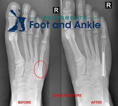 The DREADED Jones Fracture If you are a sports fan you've heard of the dreaded Jones fracture in the foot.