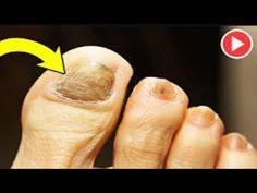 Toe Nails, Health, Youtube, Health Remedies, Feet Nails, Toenails, Health Care, Toe Polish, Youtubers