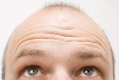 Baldness Linked To Aggressive Prostate Cancer Risk - Health News - redOrbit