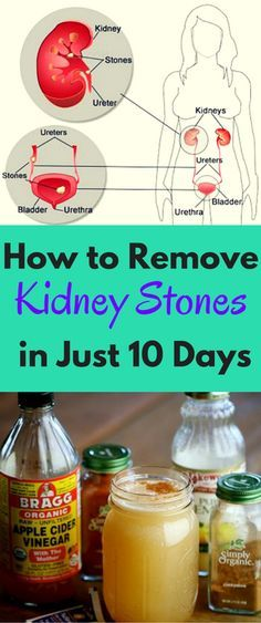 In our current demanding life, we tend to ignore tiny snags that end up being big enough to be a problem later on, and one of those problems is what we know as kidney stones.