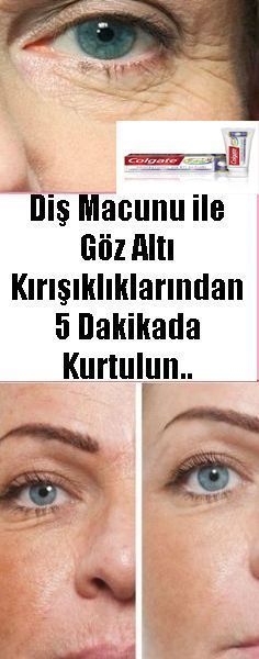 Diş Macunu ile Kaz Ayaklarınızdan 5 Daki… The Effect is Wonderful You Must Try It. Dry Goose Feet in 5 Minutes with Toothpaste. Dry Under Eyes, Under Eye Wrinkles, Concealer, Beauty Care, Beauty Hacks, Beauty Makeup, Make Up Tutorial Contouring, Brown Spots On Face, Dental
