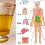 Drink 1 Cup of Turmeric-Water in the Morning and These Things Will Happen to Your Body Turmeric Water, Water In The Morning, Natural Remedies For Allergies, African Traditional Dresses, Vicks Vaporub, Home Treatment, Skin Tag, Nail Fungus, Tea Tree Oil