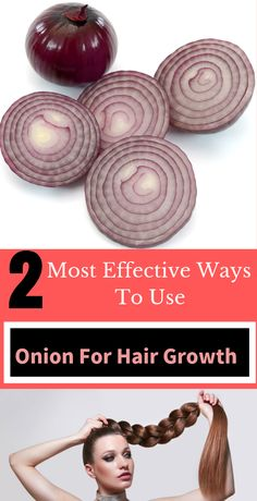 2 Most Effective Ways To Use Onion For Hair Growth - Hair Loss Onion Hair Growth, Baby Hair Growth, Hair Mask For Growth, Hair Remedies For Growth, Hair Growth Treatment, Hair Growth Tips, Acne Treatment, Long Hair Tips, Natural Hair Care Tips