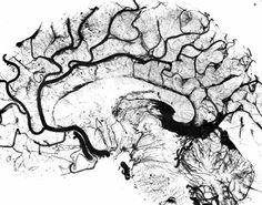 Vessels of the Human Brain