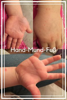 Hand-Mund-Fuß Krankheit oder auch Hand-Food-Mouth-Disease bei der Vierjährigen. In UK braucht man laut Gesundheitsamt nicht mal wegen Ansteckungsgefahr die Kinder zu Hause lassen. Hand Foot And Mouth, Hands, Alter, England, Health Department, Hand And Mouth Disease, English
