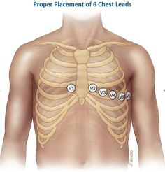 Ecg lead placement
