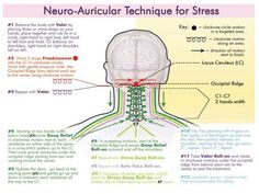 Neuro Auricular Technique for Stress