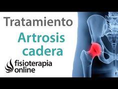 Artrosis de cadera - Tratamiento con ejercicios, estiramientos y masajes - YouTube