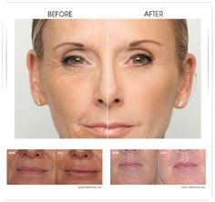 Renew your skin with the most common #cosmetic treatments administered by our #dermatologists@ http://goo.gl/plqIie  #SkinCare #London