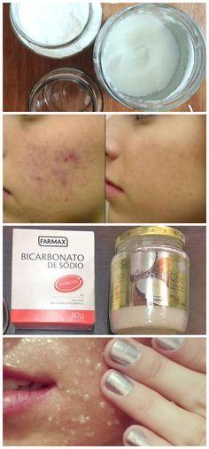 Aprenda a fazer uma limpeza de pele com esses ingredientes O que não falta no mercado são produtos que garantem uma pele mais bonita, macia e livre de acnes. Se acompanharmos as novidades lançadas…