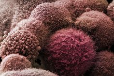 A drug used in Asia for decades to treat strokes has been found to soften the armour of pancreatic tumours, making them vulnerable to chemotherapy
