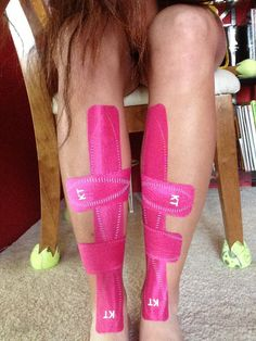 This is almost exactly what my shins look like right now! Shin Splints taping with KT (Kinesiology) tape Running Workouts, Running Tips, Running Injuries, Shin Splints Taping, K Tape, Sports Therapy, Kinesiology Taping, Athletic Training, Just Run