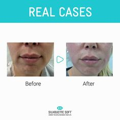 Check out these great results from a treatment #silhouettesoft #SkinRenewal #facialthreads #antiageing http://www.hbhealthofknightsbridge.co.uk/thread-lift/