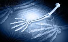 10 Reglas de Oro Para Proteger Los Huesos | Salud - Todo-Mail