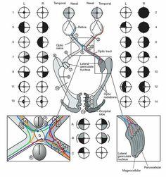 Lesiones de la vía óptica.