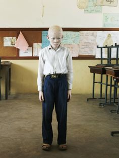 Patrick Gries | In/Visibility — The albino in parts of Africa is considered a victim of evil or magical beliefs. His or her birth is often experienced as a curse. In Tanzania, they are often dismissed and ignored. Thus the albino is, in a way, transparent. As they have no civic legitimacy, they do not exist —