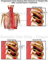 costochondritis. rib inflammation with pain and swelling of the, Skeleton