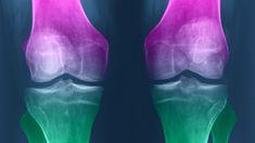 Comment régénerer le cartilage du genou naturellement