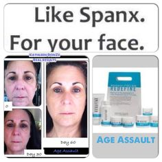 Rodan + Fields is an amazing product for people who care about their skin!! This is my neighbors before and afters using Age Assault jaclynward.myrandf.com