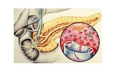 John Bavosi Solid-Faced Canvas Print Wall Art Print entitled Artwork of the pancreas showing insulin production Canvas Wall Art, Wall Art Prints, Poster Prints, Science Photos, Natural Health Remedies, Find Art, The Cure, Artwork, Ears