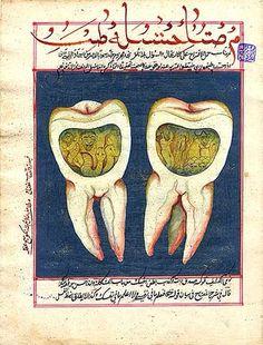 magictransistor:  Illustration from an 18th century Ottoman dental book.