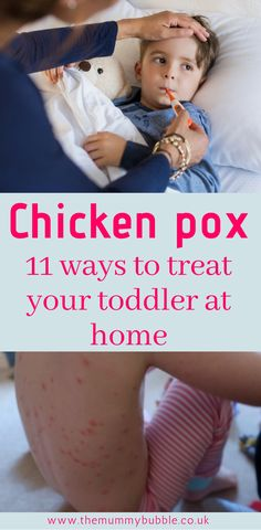 Does your toddler have chicken pox? I've got lots of Natural remedies and tips for Treating chicken pox at home that really helped my two little ones. Also check out these rash pictures to see if your child definitely has chicken pox Food For Chickens, Baby Chickens, Parenting Memes, Parenting Advice, Parenting Toddlers, Single Parenting, Chicken Pox, Thing 1, Sick Kids