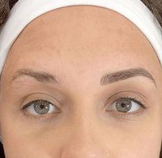 Como funciona a micropigmentação da sobrancelha. Tiramos algumas dúvidas com a especialista Lu Rodrigues sobre o tema e mostramos imagens de antes e depois