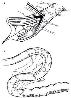 choledochal cysts: Todani classification (modified Alonso