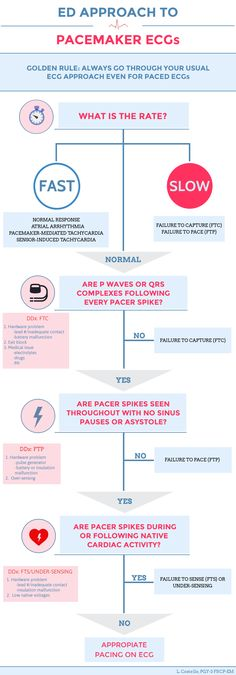ED Approach to Pacemaker ECGs
