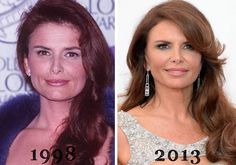 Roma Downey Plastic Surgery Before & After - http://plasticsurgerytalks.com/roma-downey-plastic-surgery/