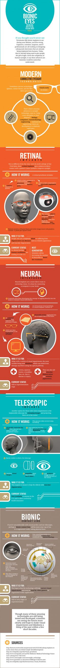 Bionic Eyes Bringing Artificial Vision Into Focus – INFOGRAPHIC   Infographipedia.com