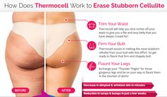 Thermo Cell Treatment — US