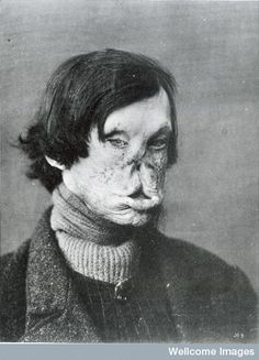 Patient with tuberous leprosy, c1895.