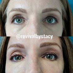Instant correction of dark under eye circles using one syringe of Restylane Silk. http://www.revivalbystacy.com/ #darkcircles #undereyecircles #silk #undereyefiller #brighteyes #stacybair #feelingfresh #oxygenetix #feelingbeautiful #youthful #restylane #awake #restylanesilk #coloradosprings #makeover #number1 #makeunder #injectors #top #colorado #coloradoinstagram  #instabeauty #cosprings #coloradosprings #beauty #revivalbystacy