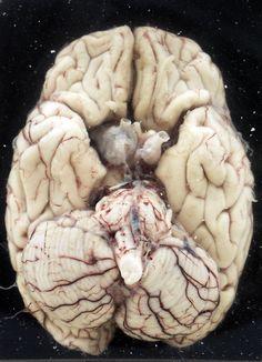 human brain-- mmm, check out that cerebellum