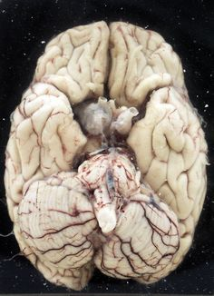 human brain-- mmm, check out that cerebellum
