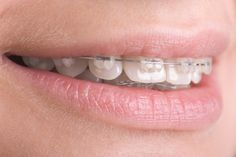 Fiji Teeth Braces - Fiji Dental Braces Guide