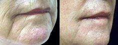 SpectraLift Non-Surgical Facelift - A Facelift Without Surgery! Laser Face Lift, Mid Face Lift, Facelift Without Surgery, Non Surgical Facelift, Cleft Lip, Neck Lift, Skin Resurfacing, Facial Rejuvenation