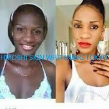 www.hiroshiskinwhiteningandhairloss.com      the strongest & safest skin whitening /bleaching products available on the market today with beautiful gorgeous natural  looking results