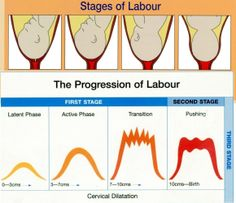Stages of Labor Más