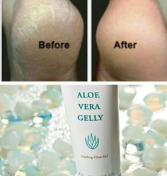 """I first heard about drinking Aloe Vera back in the early 1980's, it was when my mother was in her early sixties developing breathing problems and was prescribed prednisone. She wa…"