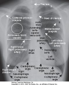 20 Radiography Ideas Radiography Medical Knowledge Radiology Technologist