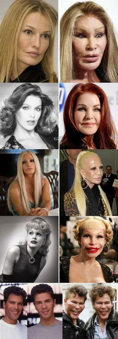 Miracle of modern plastic surgery Facts about plastic surgery: 5 boob jobs went wrong boob facts jobs plastic surPl .Facts about plastic surgery: 5 Boob jobs went wrong Bob Facts Jobs plastic SurPlastic surgery Facts: Plastic Surgery Quotes, Plastic Surgery Gone Wrong, Ivanka Trump, Surgery Humor, Celebrity Plastic Surgery, Liposuction, Acne Scars, Beauty Hacks, Funny Images