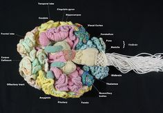 """A Real Woolly Brain  Psychiatrist Karen Norberg says the greatest challenge she faced in knitting a brain was constructing its three-dimensional anatomy from two-dimensional reference images in textbooks. """"The deep cortical structures around the corpus callosum--i.e., amygdala, hippocampus, and the limbic system in general--were the hardest to sort out,"""" she says."""