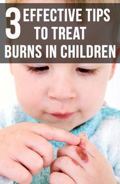 3 Effective Tips To Treat Burns In Children