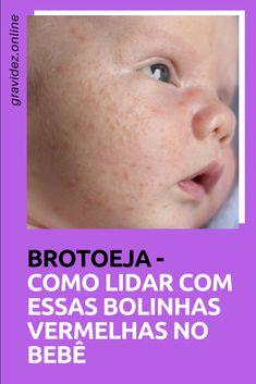 Brotoeja em bebê - Como tratar