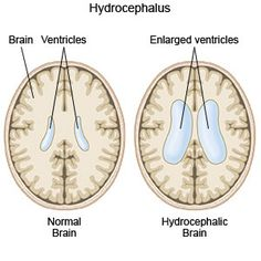 Care guide for Hydrocephalus. Includes: possible causes, signs and symptoms, standard treatment options and means of care and support. Vp Shunt, Healthy Pregnancy Tips, Pregnancy Advice, First Ultrasound, Nursing Assessment, Medical Mnemonics, Nurse Love, I Love Someone, Pediatric Nursing